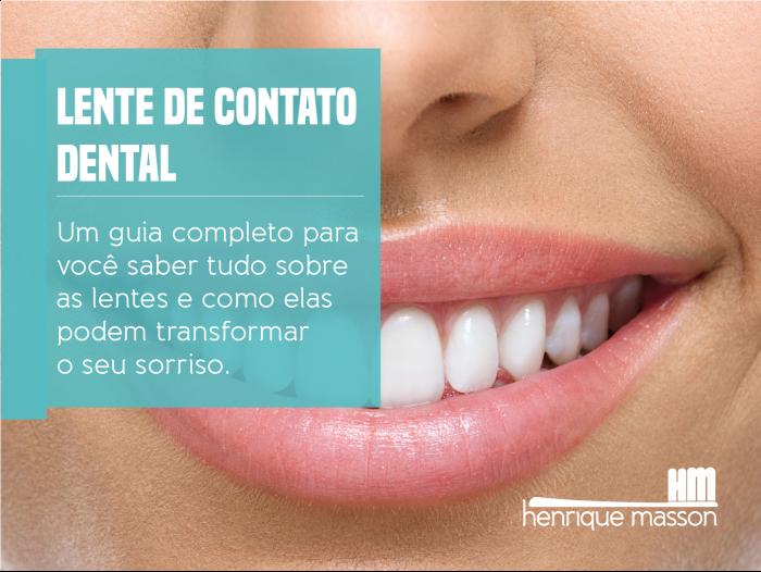 58eac9e64ddf3 EBOOK  Lente de contato Dental. O GUIA definitivo - Henrique Masson