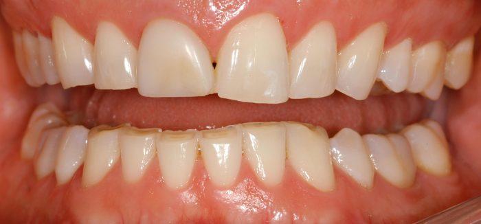 dentes-desgastados