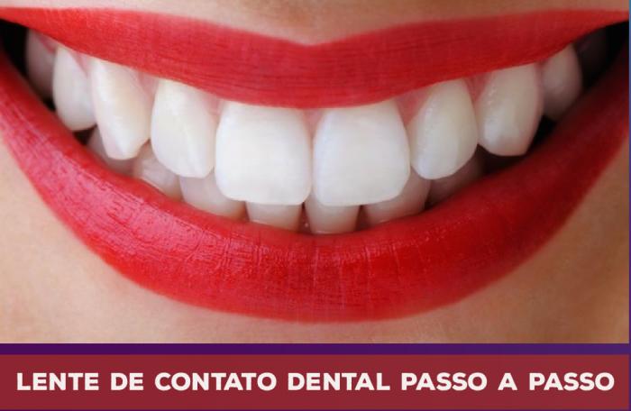 2838b3e0b3 Lente de Contato nos Dentes : Conheça o Passo a Passo do tratamento ...