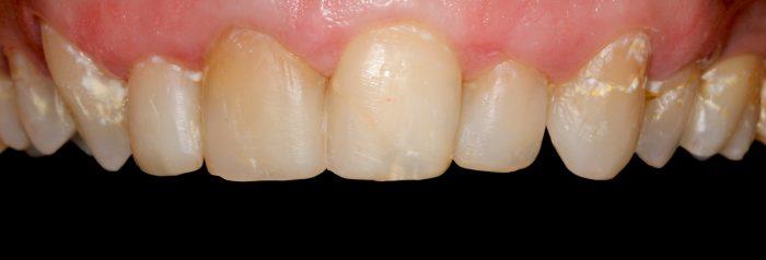 dentes-manchados