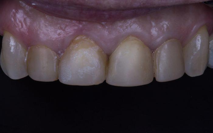 dentes-machados
