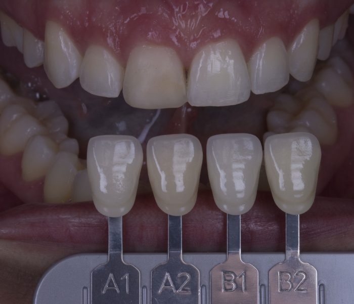 escolha de cor dos dentes