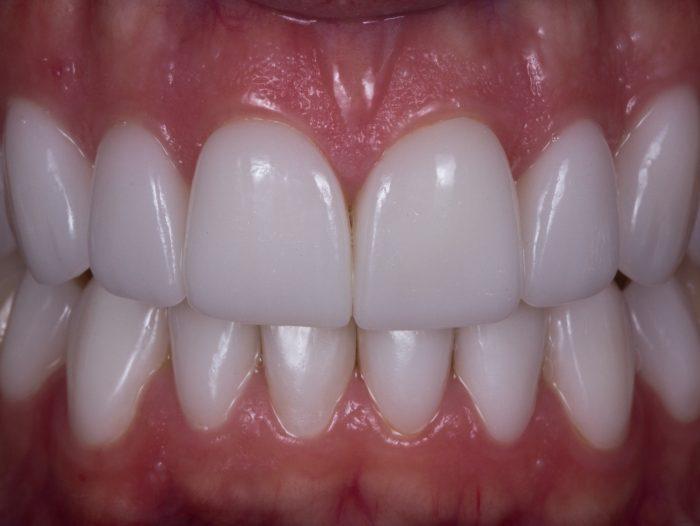 Sorriso Branco Entenda Como Escolher A Cor Dos Dentes Perfeitos