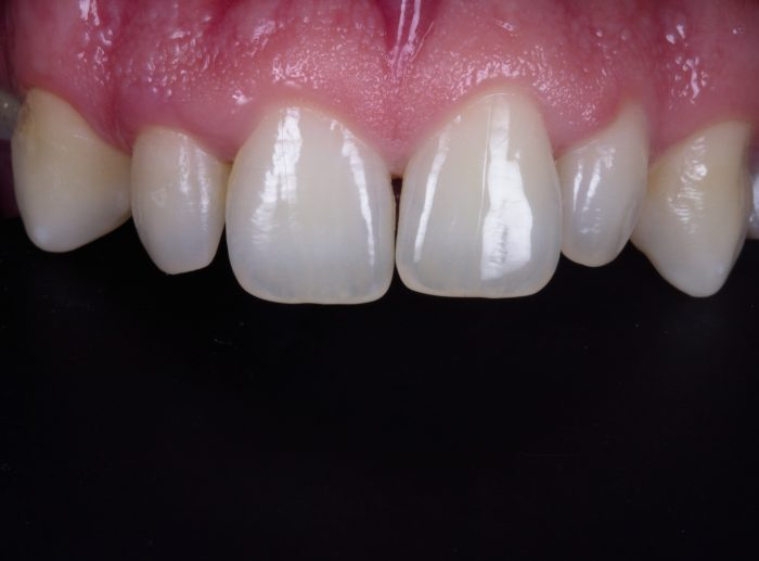 alteração de forma do dente